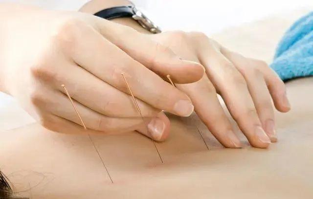 针刺补泻有哪些手法?如何操作?